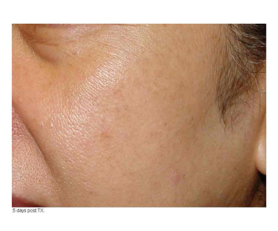 Laser Skin Resurfacing 5 days After