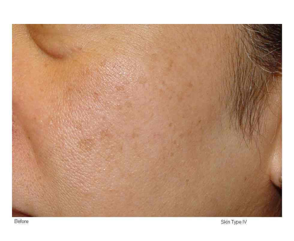 Laser Skin Resurfacing Before