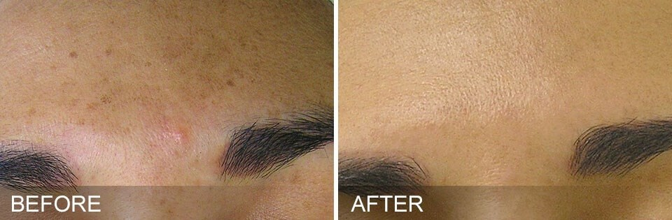 HydraFacial in Fleming Island Before & After Brown Spots