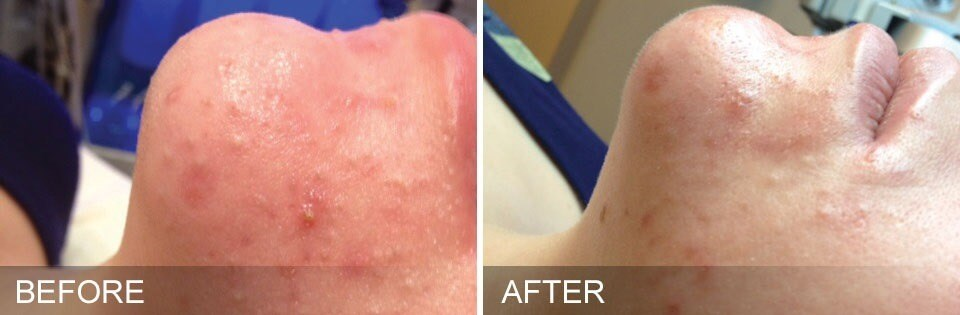 HydraFacial in Fleming Island Before & After Acne