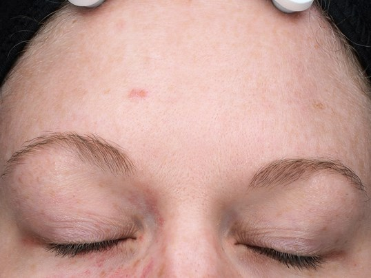 Clear Skin From Age Spots w/2 IPL Treatments - Jacksonville, FL