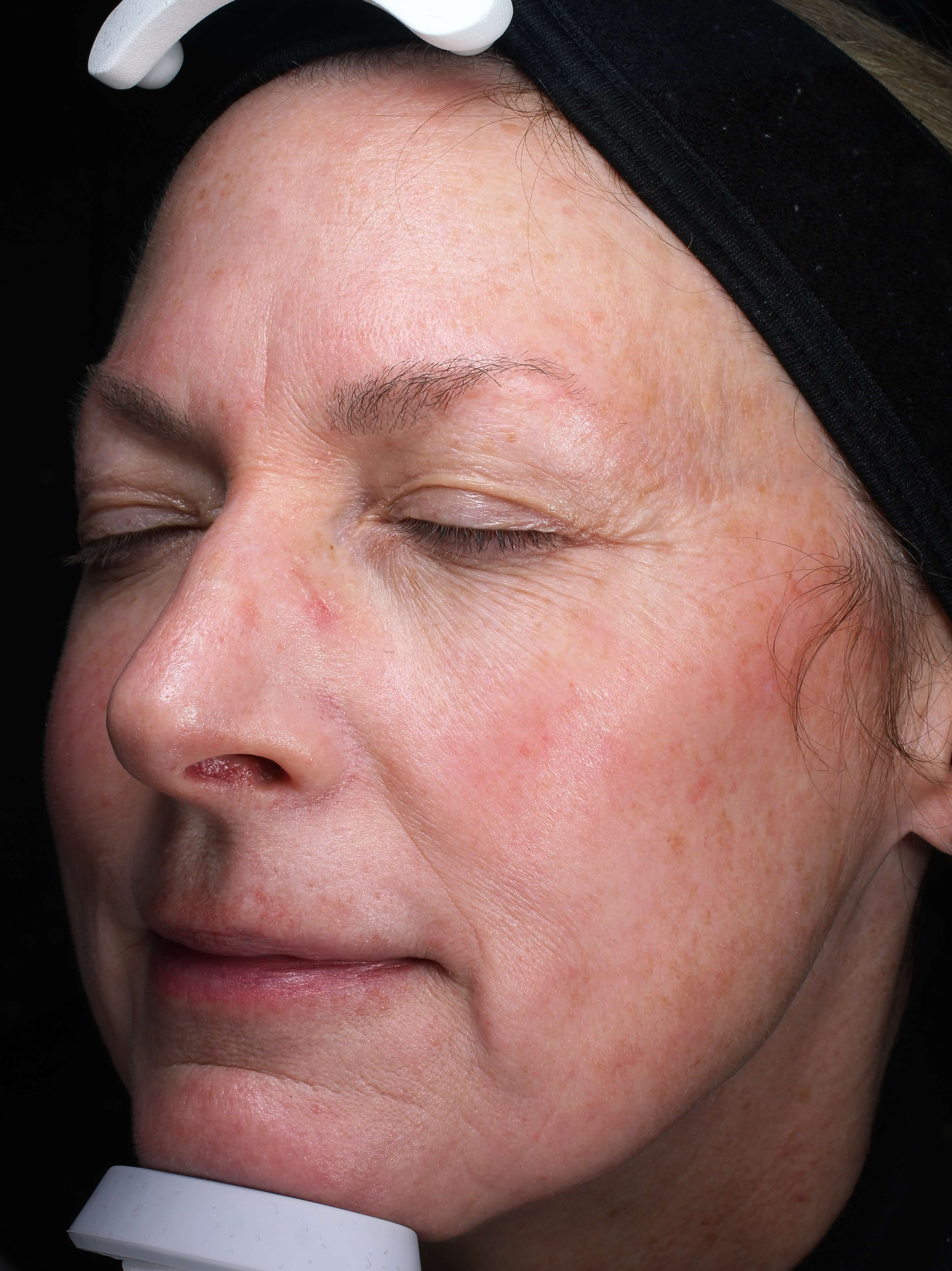 Skin Texture Improvement w/Picogenesis for Aging Skin