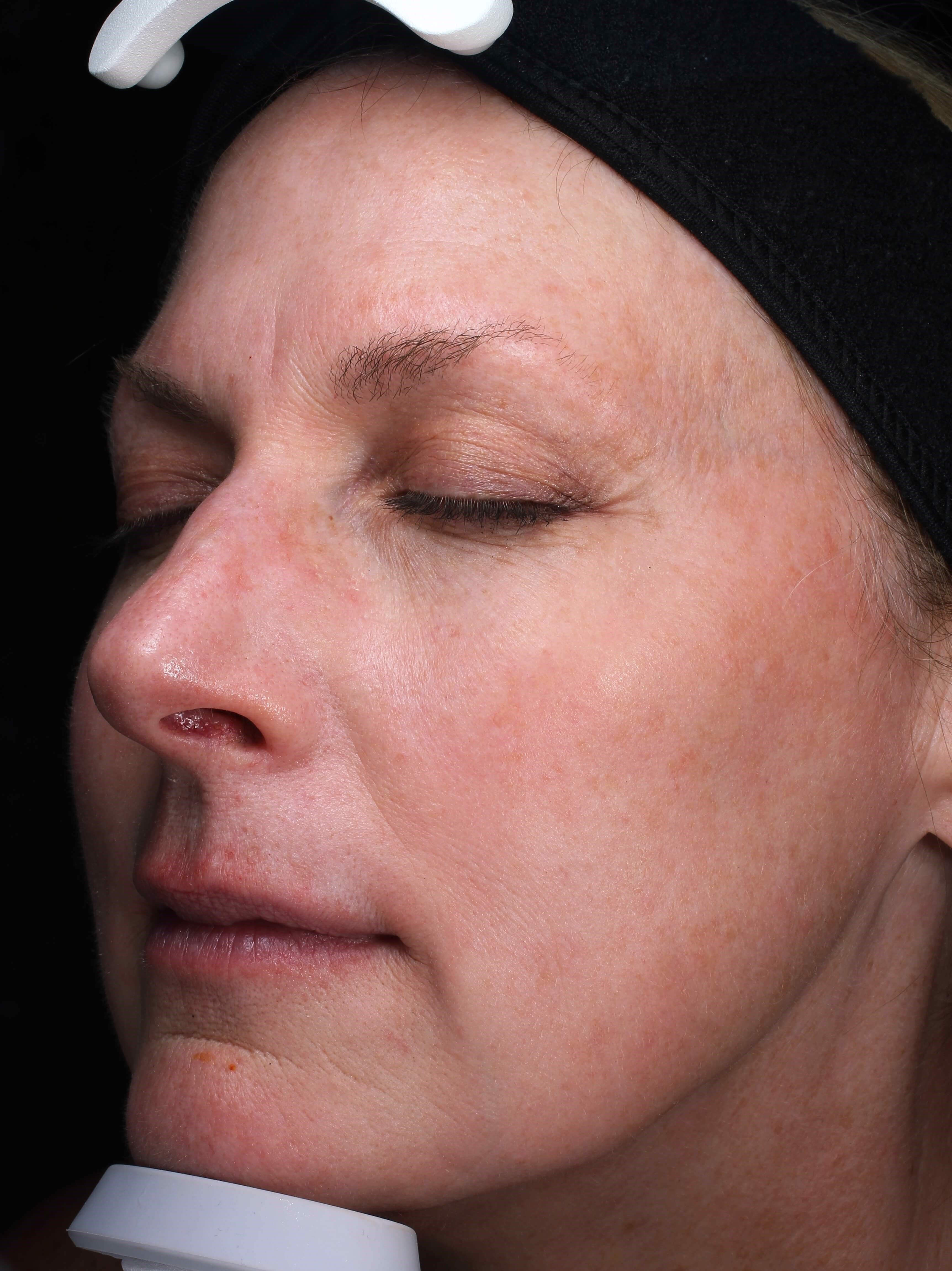 Wrinkles Vivace Microneedling After