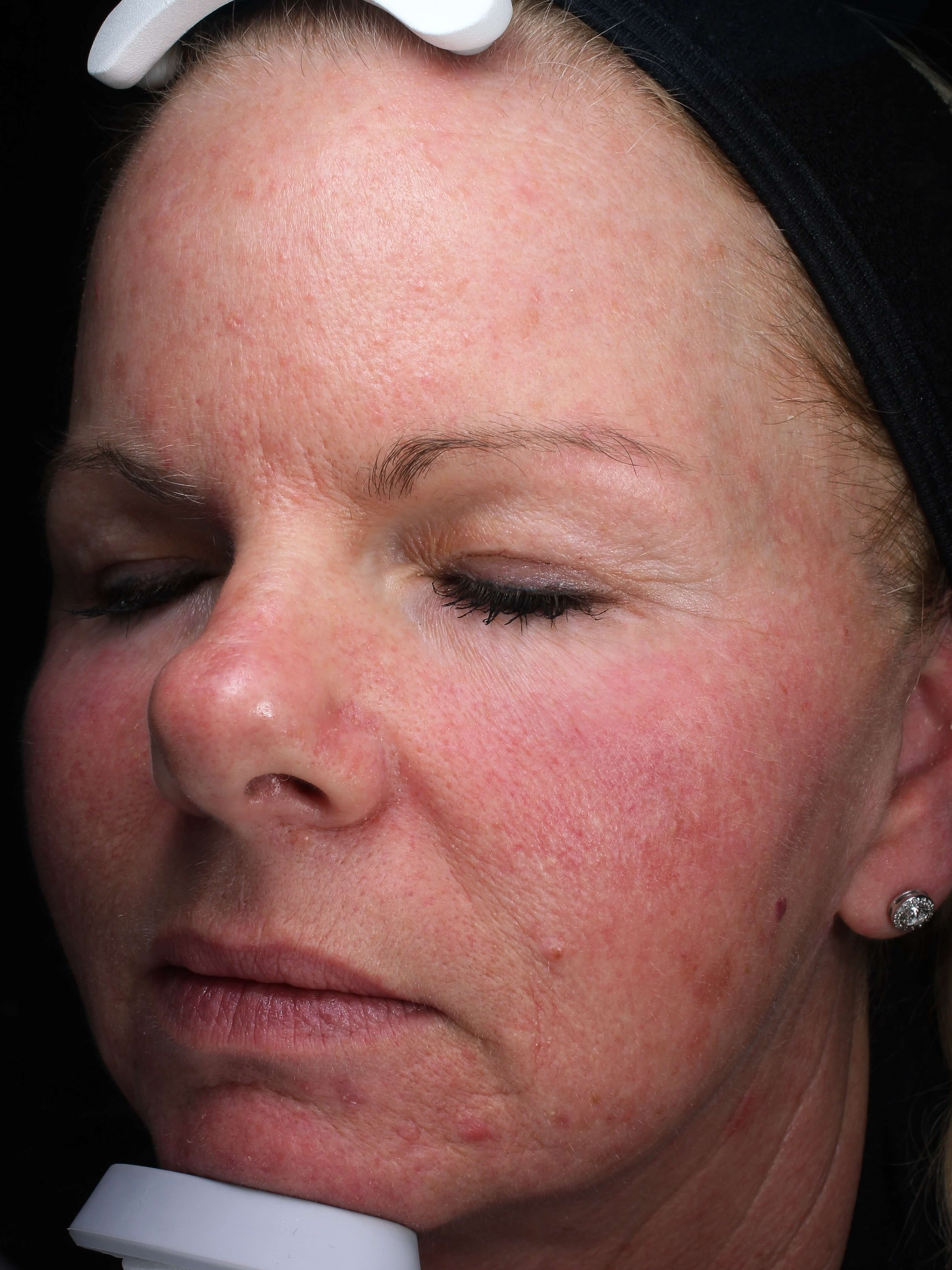 IPL Skin Rejuvenation Before