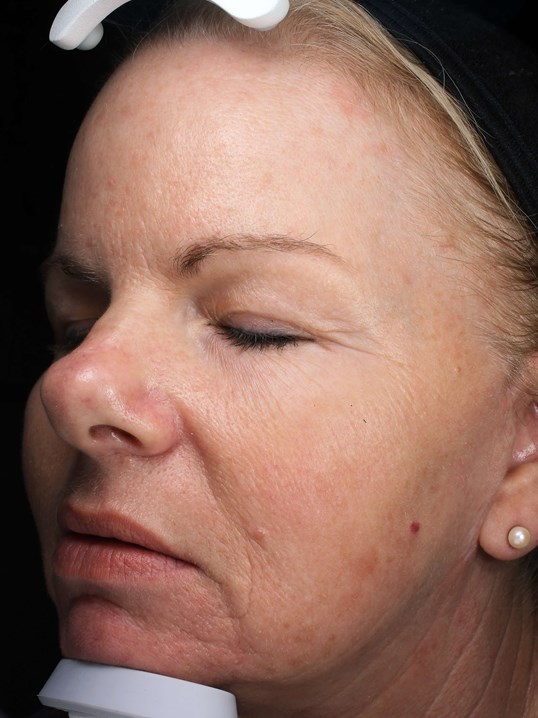 IPL Skin Rejuvenation After