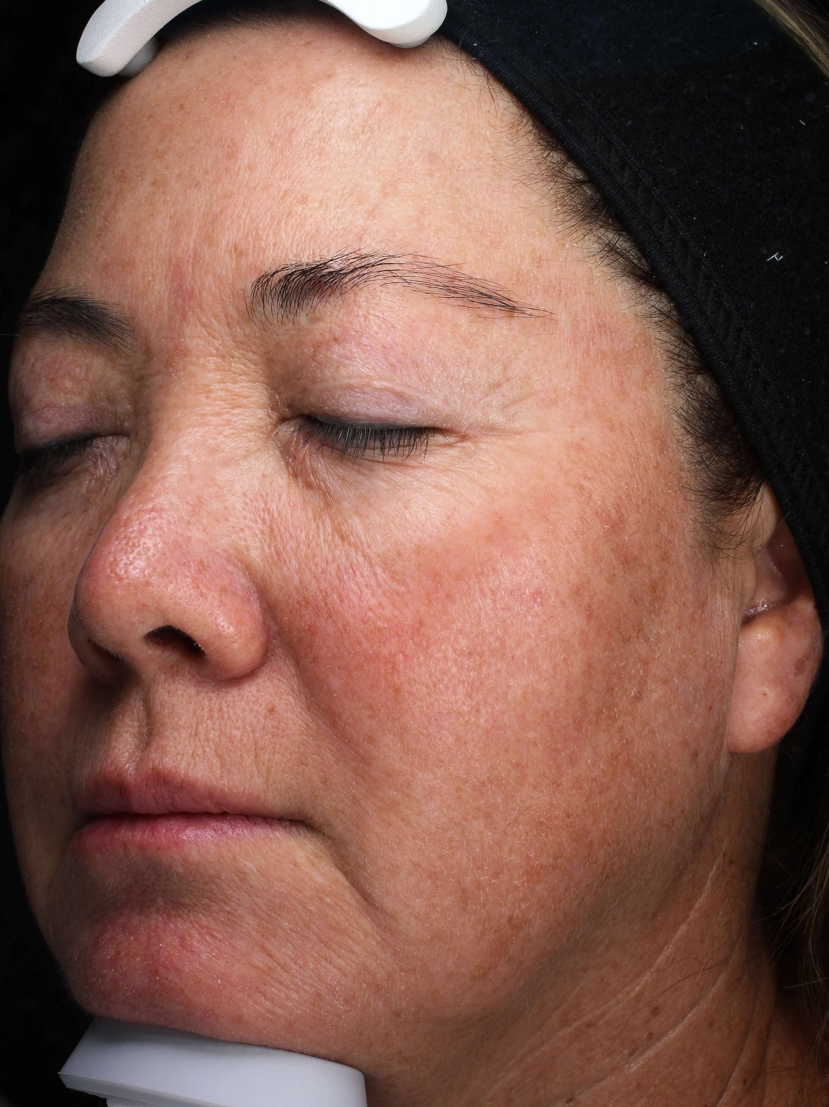 Picogenesis Laser Rejuvenation After