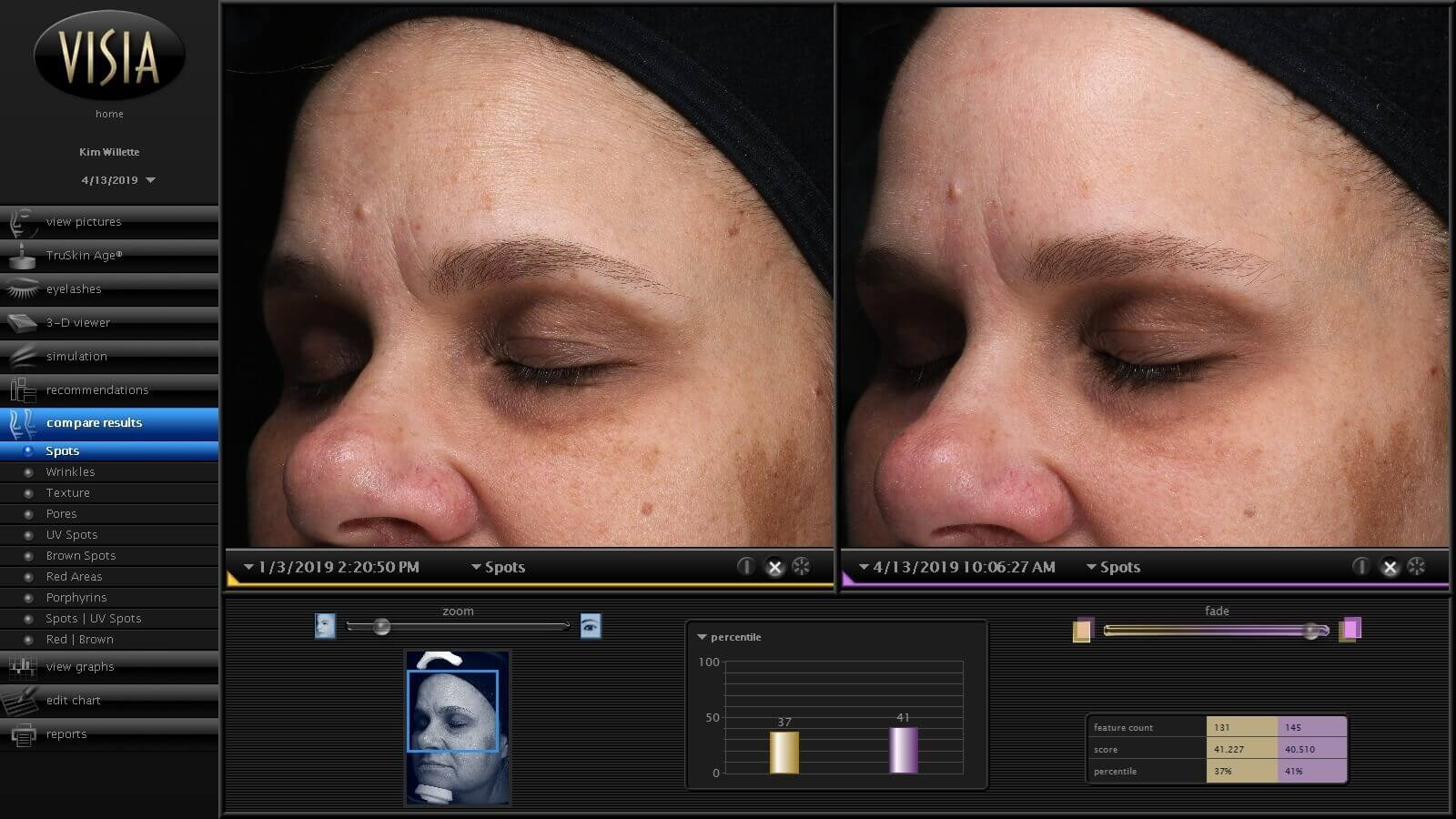 Skin Improved w/ HydraFacial Before & After