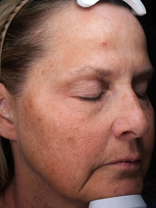 Hydrafacials & IPL  for aging Before