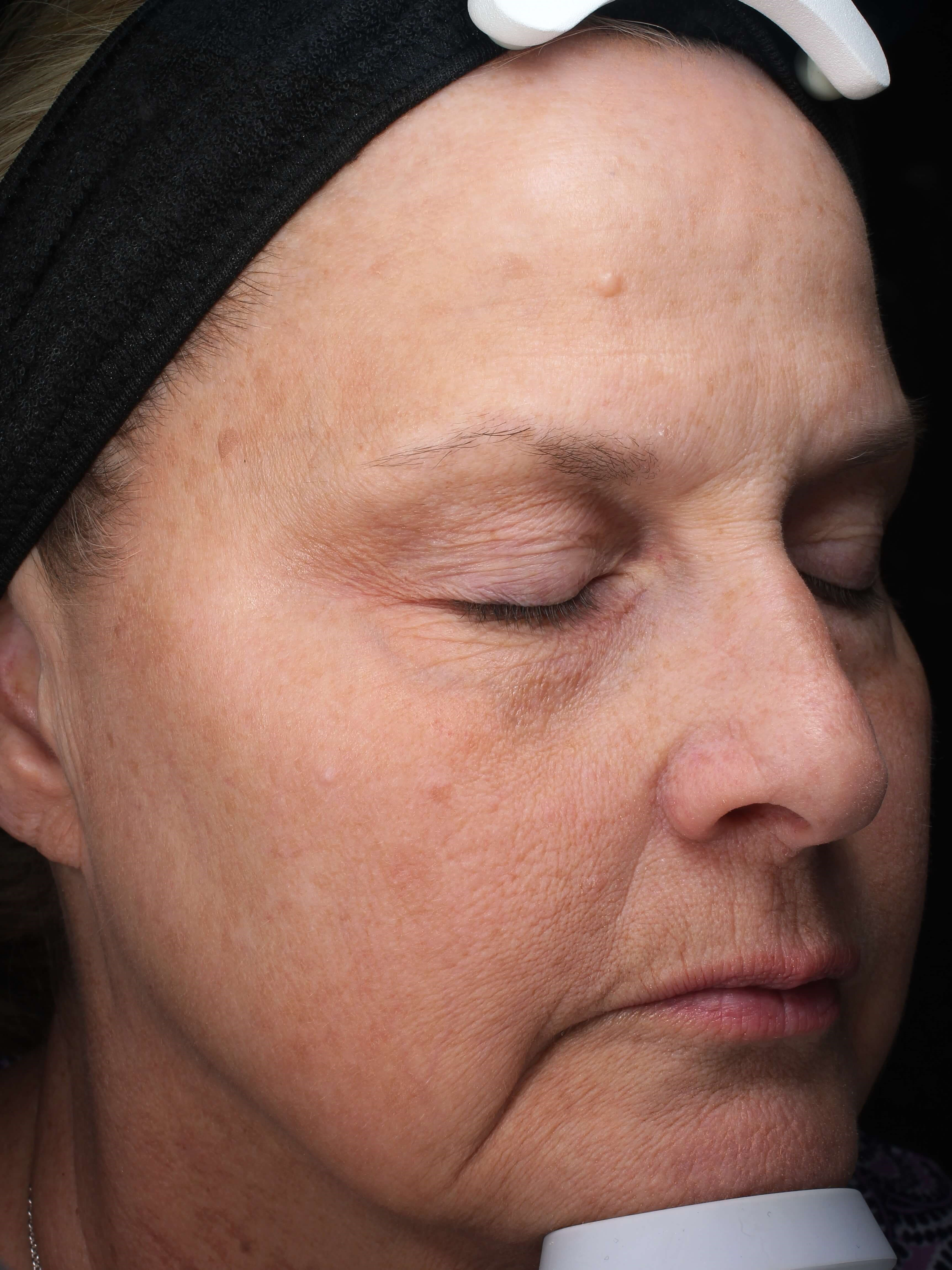 Hydrafacials & IPL  for aging After