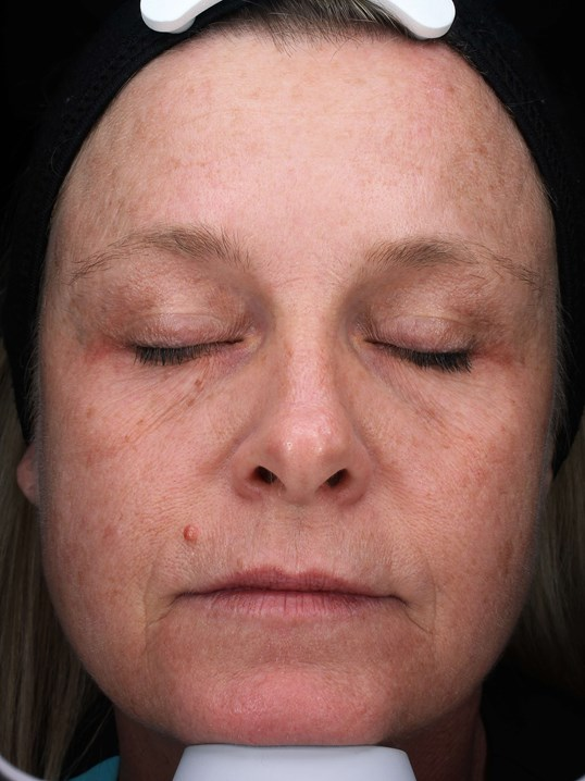 Injectables improve wrinkles Before