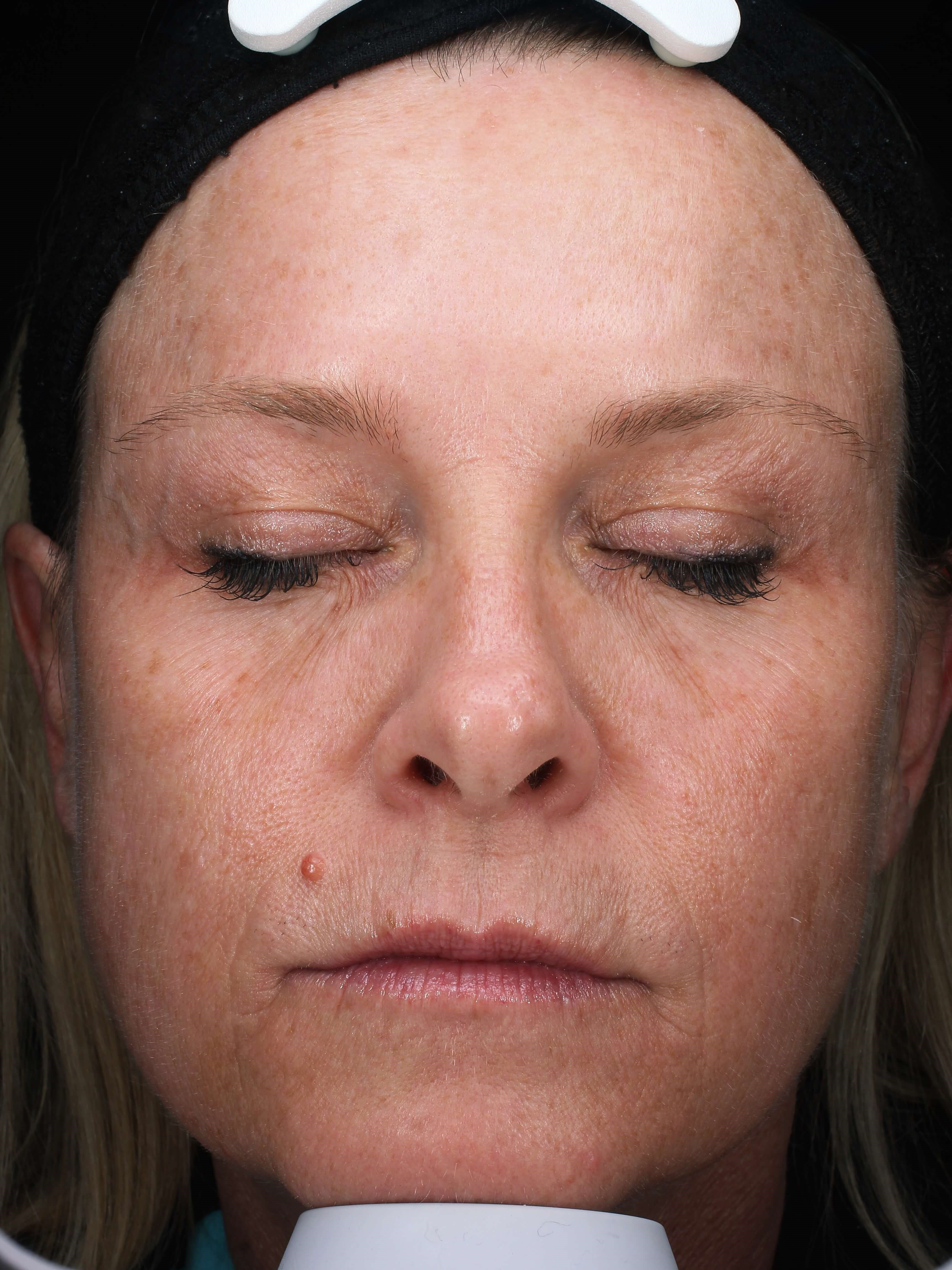 Injectables improve wrinkles After