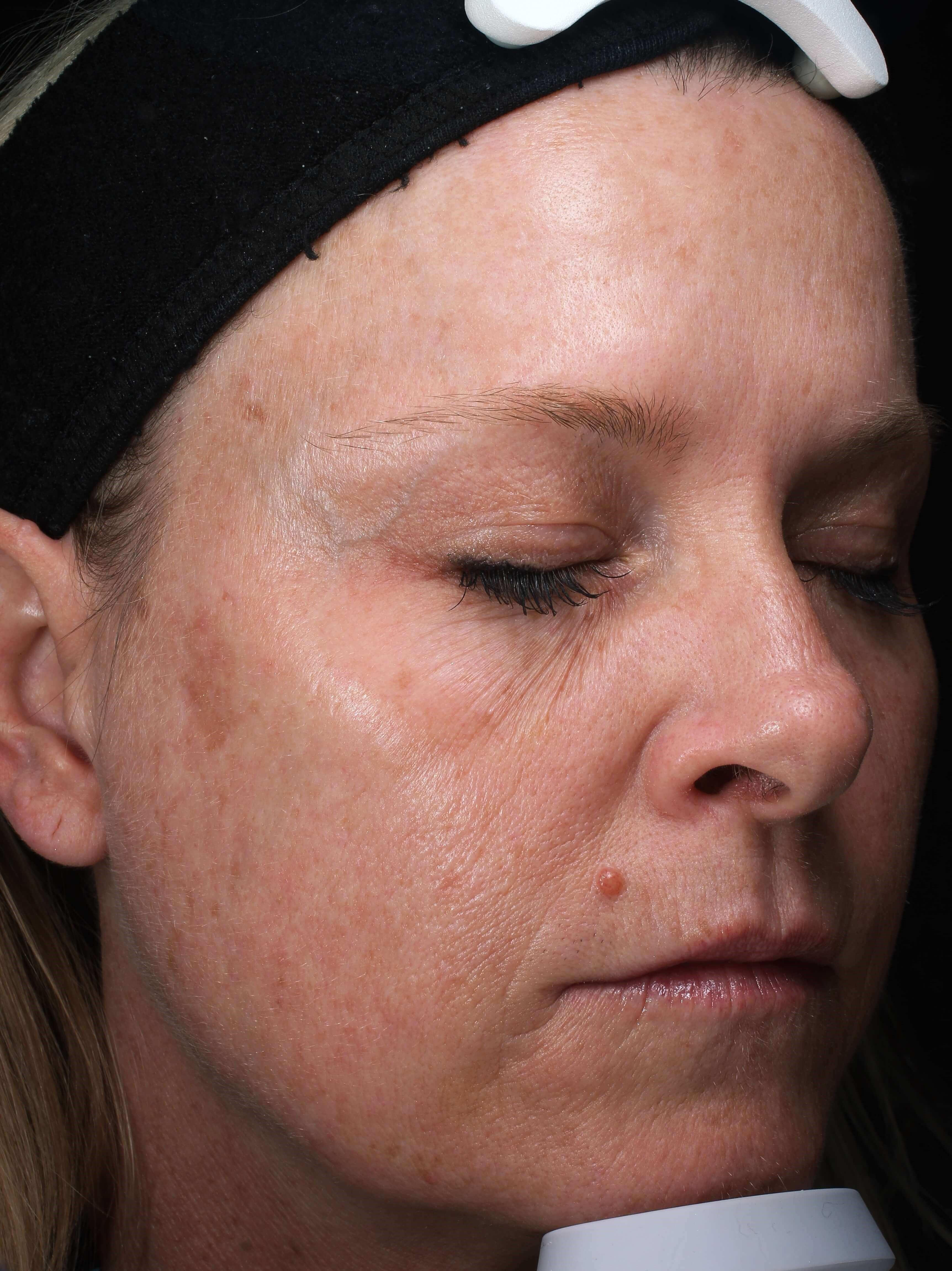 Radiesse and Xeomin  treatment After